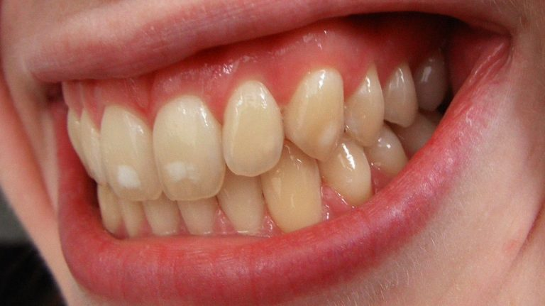 Too much fluoride can create a condition called fluorosis—white spots on the teeth. By josconklin (Own work) [<a href=
