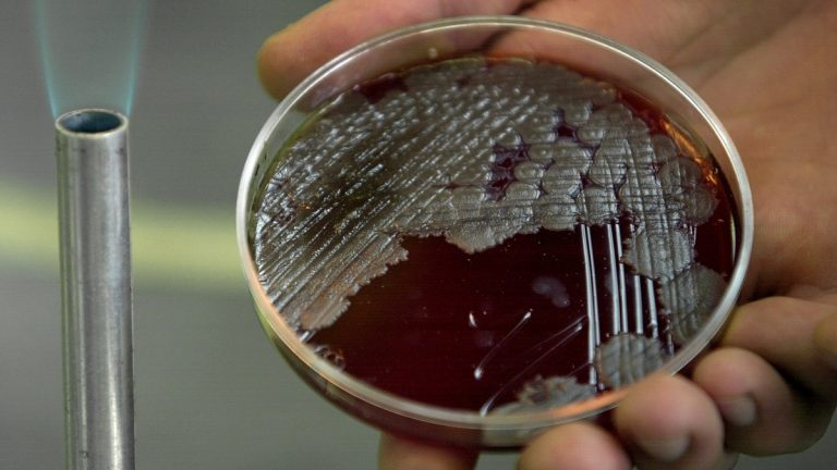 Chemistry student Jorge Rodriguez Martinez holds a sample of billions of Anthrax bacteria at the National School of Biological Sciences in Mexico City, Wednesday, Oct. 17, 2001. (AP Photo/Victor R. Caivano)