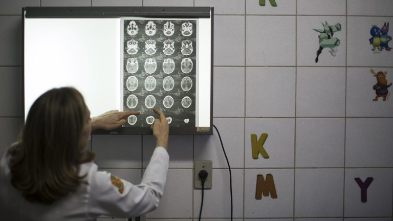 Dr. Angela Rocha shows brain scans of a baby born with microcephaly at the Oswaldo Cruz Hospital in Recife, Brazil. Brazilian officials still say they believe there's a sharp increase in cases of microcephaly and strongly suspect the Zika virus, which first appeared in the country last year, is to blame. The concern is strong enough that the U.S. Centers for Disease Control and Prevention this month warned pregnant women to reconsider visits to areas where Zika is present. (Felipe Dana/AP Photo)