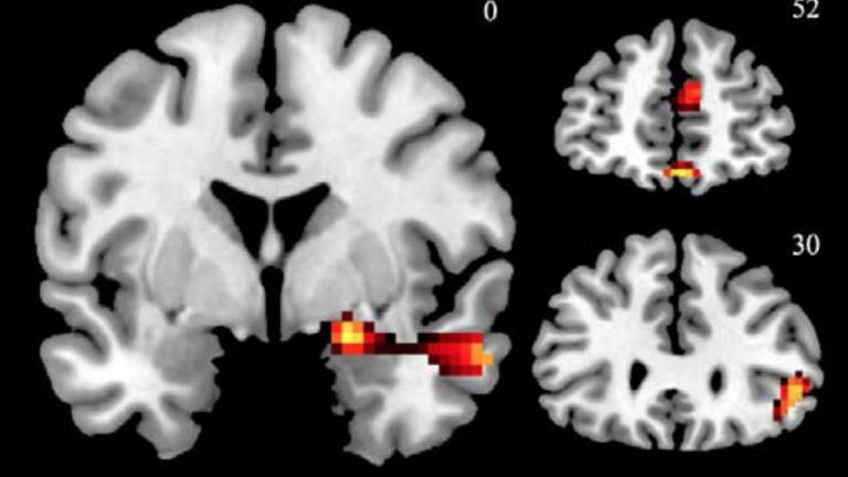 This fMRI image shows activations in the brain