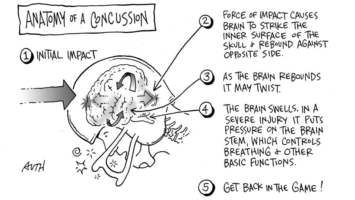 From the archive: Anatomy of a concussion, and the NFL\'s brain ...