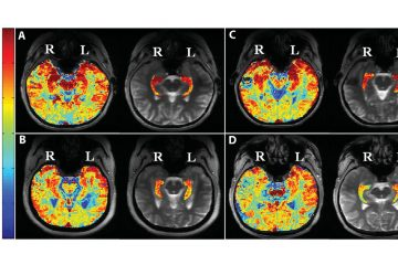 Brain sections from four patients with drug-resistant epilepsy showing the glutamate-imaging signal. (Image courtesy Davis et al., Science Translational Medicine 2015)