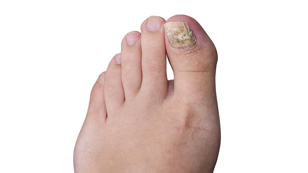 908fb1b605 11 tips to avoid toenail fungus: Easy to catch, hard to kill - WHYY