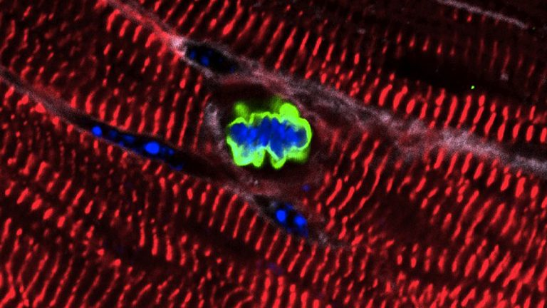 An adult heart muscle cell in a mouse re-enters the cell cycle after expression of a cluster of microRNAs. (Image courtesy Lab of Ed Morrisey, Perelman School of Medicine, University of Pennsylvania)