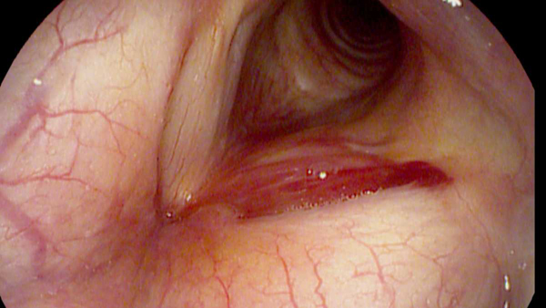 Acute vocal fold hemorrhage in a young