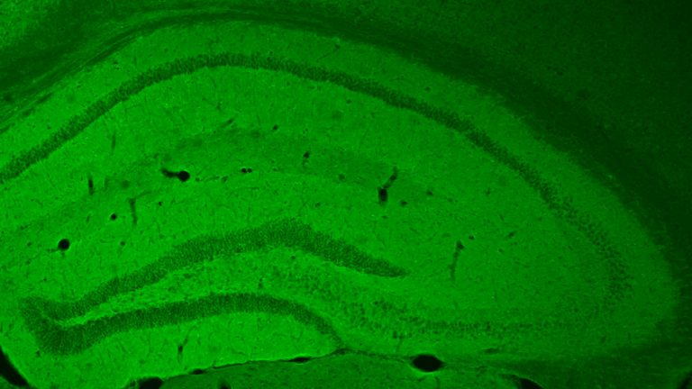 The hippocampus of a mouse glows green where cells have taken up a receptor that triggers the cAMP signaling pathway. (Image courtesy of the University of Pennsylvania)