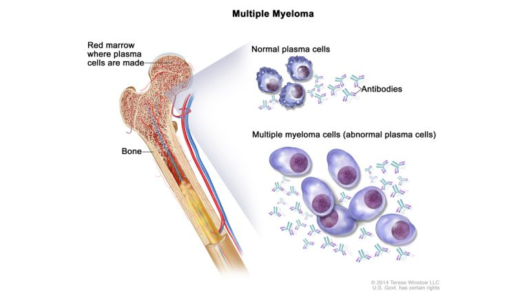 Multiple myeloma cells are abnormal plasma cells (a type of white blood cell) that build up in the bone marrow and form tumors in many bones of the body. (Image via NIH/Cancer.gov)