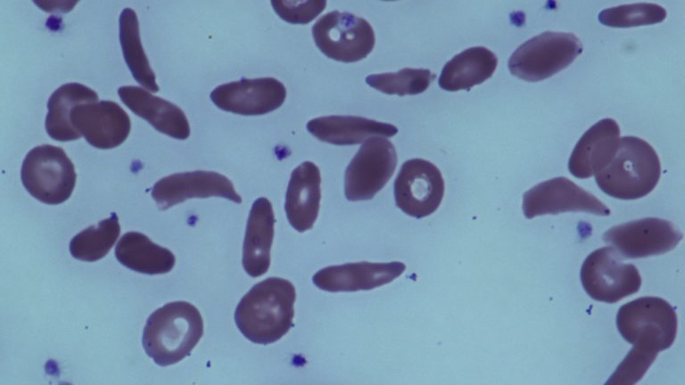 This June 2014 image provided by the National Institutes of Health, shows red blood cells in a patient with sickle cell disease at the National Institutes of Health Clinical Center in Bethesda, Md. A small but promising government study by National Institutes of Health found that bone marrow transplants can reverse severe sickle cell disease in adults. Results were published Tuesday, July 1, 2014, in the Journal of the American Medical Association. (AP Photo/National Institutes of Health)