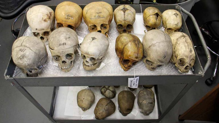 Children's skulls in the Penn Museum collection, collected from many eras and locations, trace changes in human dentition. (Emma Lee/WHYY)