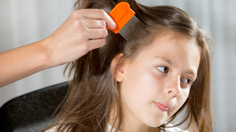 "(<a href=""http://www.shutterstock.com/pic-229494385/stock-photo-mother-treating-daughter-s-hair-against-lice.html?src=BXkBVN8f_rebp_vXdectFQ-1-0"">Photo</a> via ShutterStock)"