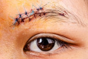 Researchers at the University of Pennsylvania have discovered a way to make wounds heal differently