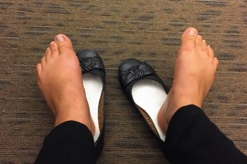 Ballerina flats are the worst shoes to wear if you want to prevent sweaty, smelly feet. (WHYY News)