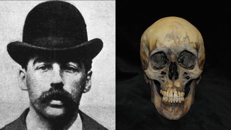 Serial Killer H Holmes Is Depicted In An 1895 Photo Beside The Skull Exhumed From His