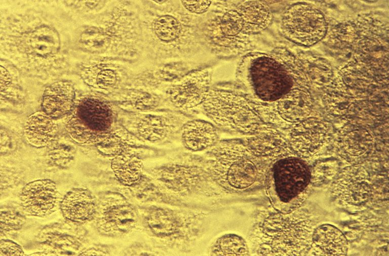 This 1975 microscope image made available by the the Centers for Disease Control and Prevention shows Chlamydia trachomatis bacteria magnified 200X.  (Dr. E. Arum, Dr. N. Jacobs/CDC via AP)