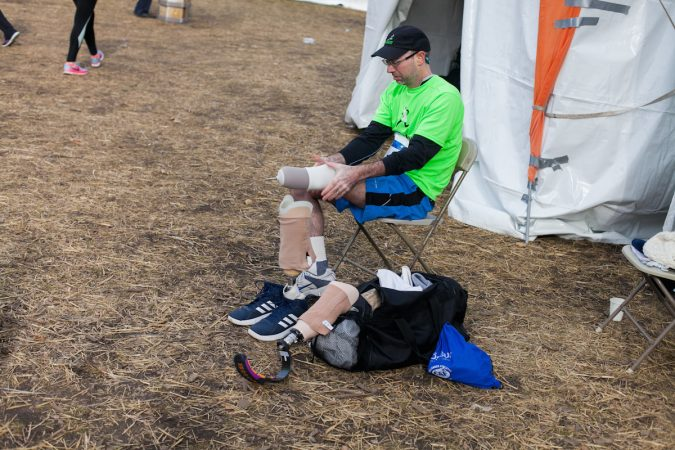 Evan Freiberg changes his prosthetic before the Rothman Institute 8k Saturday. The 43-year-old is diagnosed with leiomyosarcoma, a form of cancer, and competed after losing the bottom portion of his left leg to the disease. (Brad Larrison for WHYY)