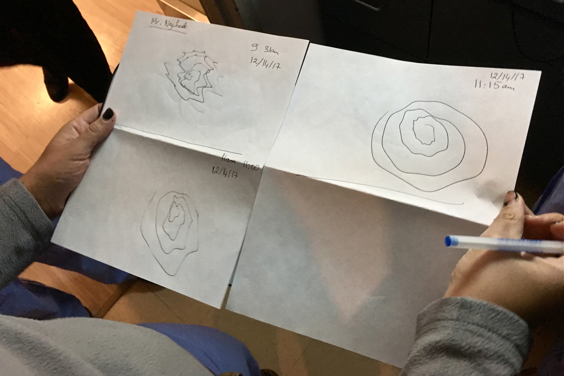 Drawings show the progression of James Neyhart's tremor suppression.