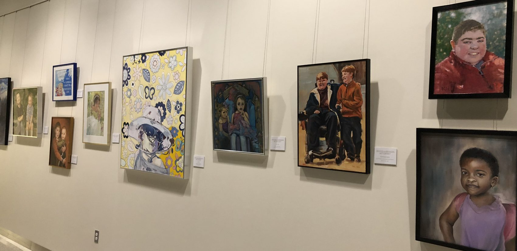 A unique art exhibit that focuses on children living with a rare disease is now on display at Nemours/Alfred I. duPont Hospital for Children in Wilmington. (Shirley Min/WHYY)