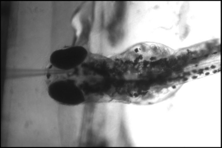A zebafish larva sits in agarose gel to stabilize it on a glass microscope slide. A microelectrode, which looks like a needle point, measures electricity in its brain, telling scientists how often and how severe its seizures are