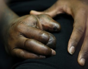 In this Oct. 30, 2015, file photo, the hand of New York Giants defensive end Jason Pierre-Paul is seen as he speaks to reporters for the first time since a fireworks injury disabled his right hand, in East Rutherford, N.J.  (Julio Cortez/AP Photo, file)