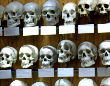 A collection of skulls at the Mutter Museum Tuesday, April 5, 2005, in Philadelphia. (George Widman/AP Photo)