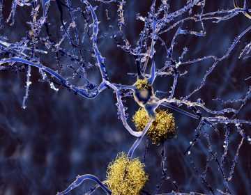 Amyloid plaques accumulate outside neurons. Amyloid plaques are characteristic features of Alzheimer's disease. (Bigstock/animaxx3d)