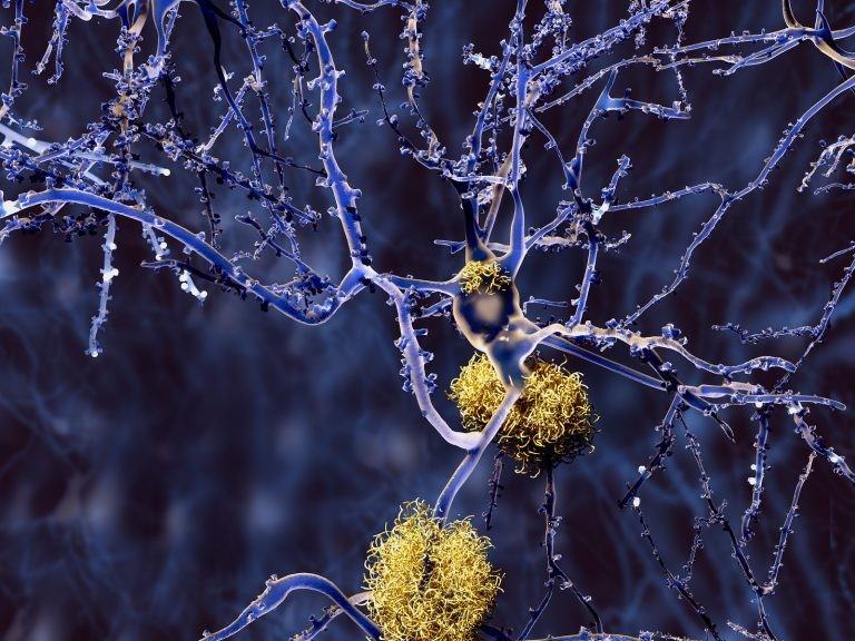 Amyloid plaques accumulate outside neurons. Amyloid plaques are characteristic features of Alzheimer's disease. (Animaxx3d/BigStock)