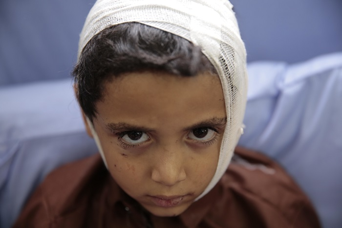 A child injured in a deadly Saudi-led coalition airstrike on Thursday rests in a hospital in Saada, Yemen, Sunday, Aug. 12, 2018. Yemen's shiite rebels are backing a United Nations' call for an investigation into the airstrike in the country's north that hit a bus carrying civilians, many of them school children in a busy market, killing dozens of people including many children. (AP Photo/Hani Mohammed)