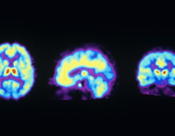 These PET scans show the normal distribution of opioid receptors in the human brain. A new study suggests ketamine may activate these receptors, raising concern it could be addictive. (Philippe Psaila/Science Source)