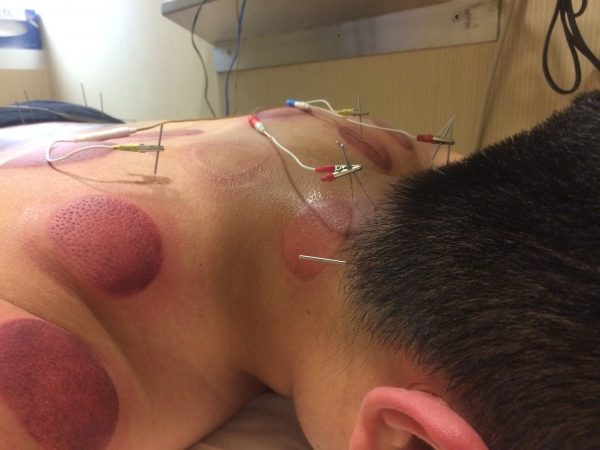 The red marks come from cupping. The acupuncturist says it promotes blood flow, and the different colors tell her which points need extra attention. Darker means more serious. (Alan Yu/WHYY)