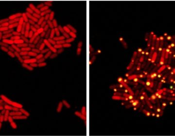 In these images, E coli bacteria harbor proteins from a bacteria-killing virus that can eavesdrop on bacterial communication. (At left) One protein from the virus has been tagged with a red marker; (at right) the virus has overheard bacterial communication indicating the bacteria have achieved a quorum; it sends its protein to the poles of the cell (yellow dots). (Bonnie Bassler and Justin Silpe, Department of Molecular Biology, Princeton University)