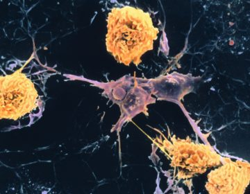 A scanning electron micrograph shows microglial cells (yellow) ingesting branched oligodendrocyte cells (purple), a process thought to occur in multiple sclerosis. Oligodendrocytes form insulating myelin sheaths around nerve axons in the central nervous system. (Dr. John Zajicek/Science Source)