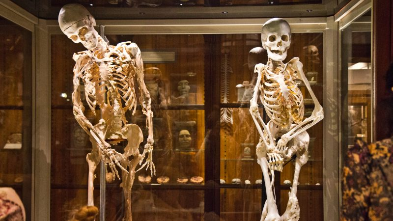 The skeletons of Harry Eastlack (left) and the newly added Carol Orzel on display at the Mütter Museum in Philadelphia. Both had Fibrodysplasia Ossificans Progressiva (FOP), a rare disorder in which connective tissue is replaced by bone. (Kimberly Paynter/WHYY)