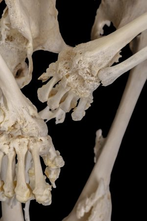 Over time, Carol Orzel's joints fused together because of the rare bone disease, fibrodysplasia ossificans progressiva, also known as FOP. (Provided)