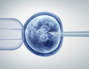 Illustration of in vitro fertilization