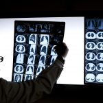A doctor looks at the CT scan of a lung cancer patient. (Andy Wong/AP Photo)