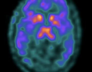 PET brain imaging of an opioid receptor binding. (Penn Medicine)