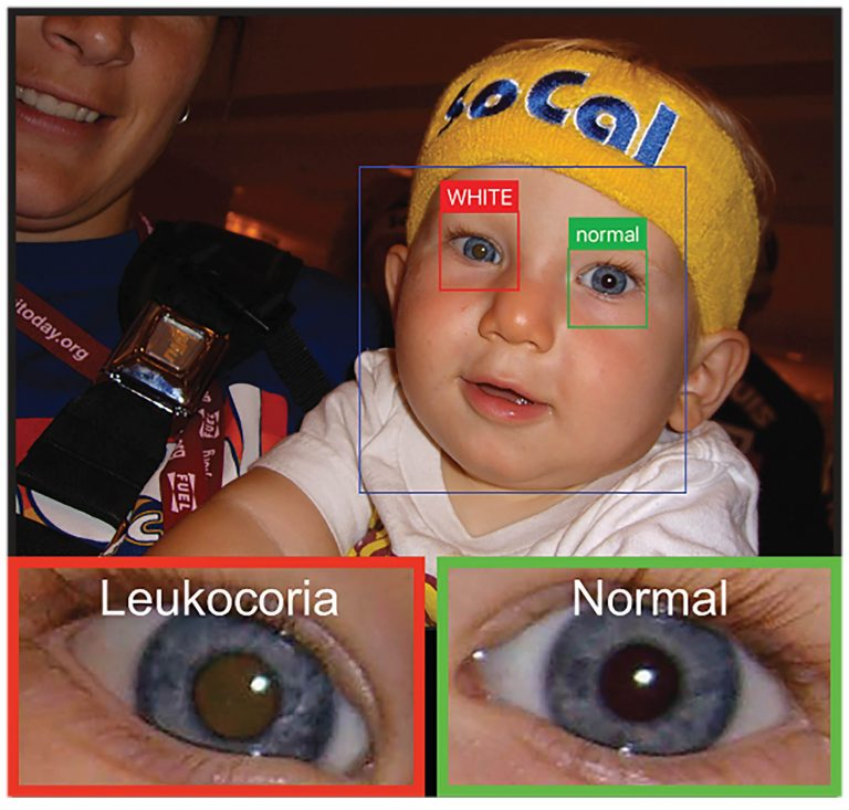 An app uses a smart phone camera to detect leukocoria, a pale reflection from the back of the eye. It can be an early sign of disease. Here it appears light brown compared the healthy eye. (Munson et al., Sci. Adv. 2019; 5 eaax 6363)