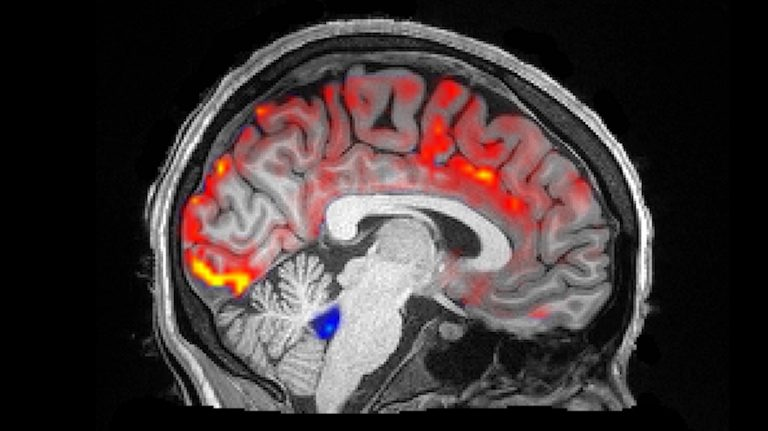 During deep sleep, waves of cerebrospinal fluid (blue) coincide with temporary decreases in blood flow (red). Less blood in the brain means more room for the fluid to carry away toxins, including those associated with Alzheimer's disease. (Fultz et al., 2019)