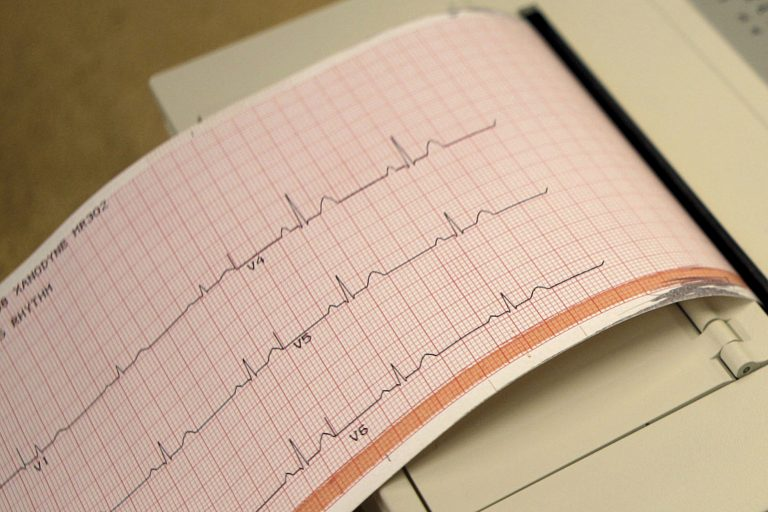 This May 26, 2009 file photo shows a printout from an electrocardiogram machine in Missouri. Doctors are reporting that novel drugs may offer fresh ways to reduce heart risks beyond the usual medicines to lower cholesterol and blood pressure. One new study found that heart attack survivors benefited from a medicine long used to treat gout. Gene-targeting medicines also showed promise in studies discussed Monday, Nov. 18, 2019,  at an American Heart Association conference in Philadelphia. (Jeff Roberson/AP Photo)