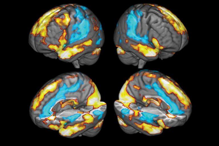 An image from neuroscientist Glenn Fox's study on the neural correlates of gratitude. (Image courtesy of Glenn Fox)