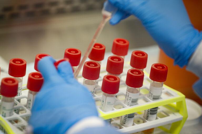 Coronavirus patient samples