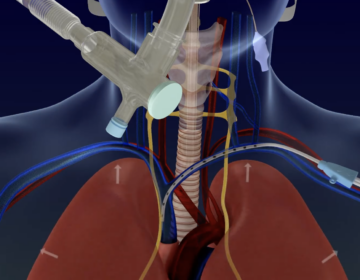 Through a catheter (on the right), the Lungpacer sends small electrical signals to the nerves to coax the diaphragm into action while the patient is on the ventilator. (Screenshot via Lungpacer Medical Inc.)