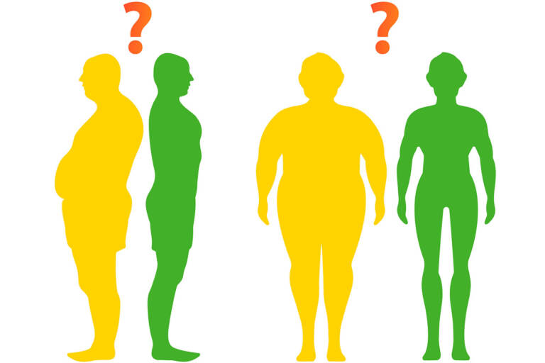 Before and after weight loss. For those who have bariatric surgery, changes in appearance happen quickly, creating new social situations to navigate. (CollageM/Bigstock)