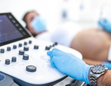 Close up of Ultrasound pregnancy examination.