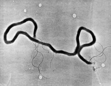 The organism treponema pallidumch is seen through an electron microscope